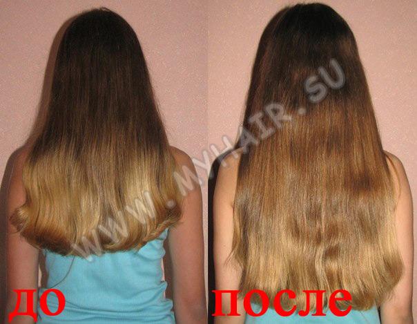 Никотиновая кислота и дарсонваль для волос